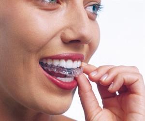 Система Invisalign для выравнивания зубов